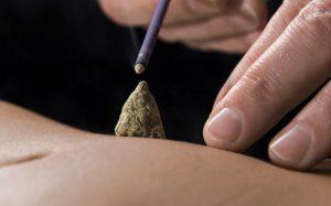 Acupunctuur Amersfoort