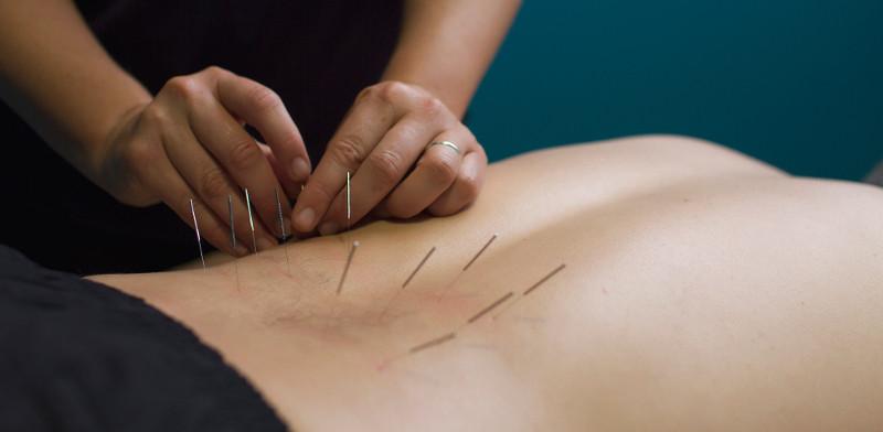 Acupunctuur bij Chronische Pijn