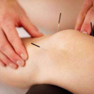 acupunctuur Sportblessures