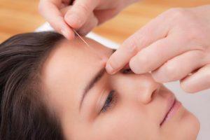 Acupunctuur Allergieën en Hooikoorts