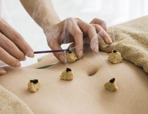 Acupunctuur bij Darmklachten